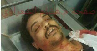 اول صورة للشهيد القبطي وائل يوسف الذي أطلق عليه النار في العريش